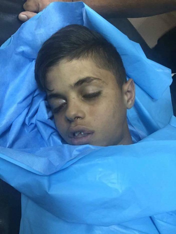 قتل فلسطينيين 20-07-2016Killings 20-07-2016רצח פלסטינים 20-07-2016 sivileri öldürmesi 20-07-2016 Убйиство палестинцев 20-07-2016
